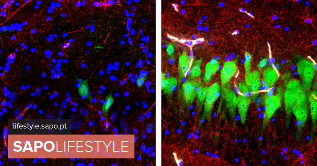 Scientists succeed in reactivating dead brain cells for the first time