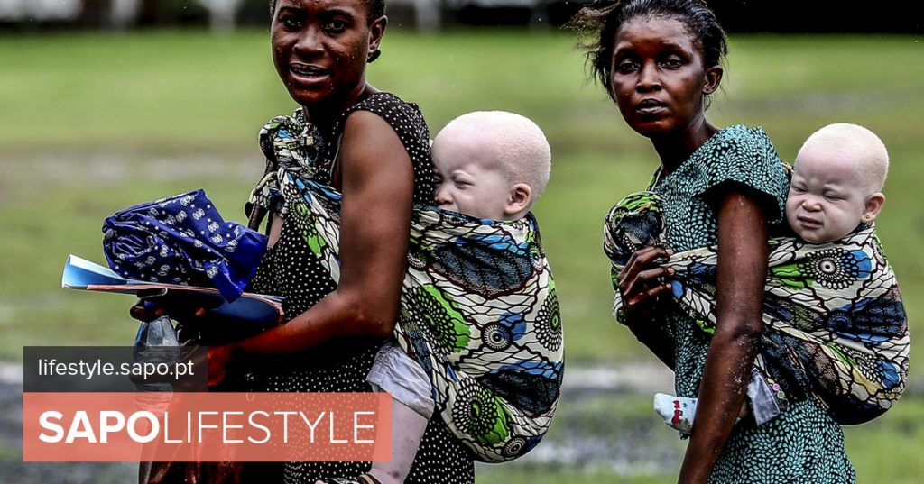 Albino birth in Africa is to live a life of fear and trials - Health and Medicine